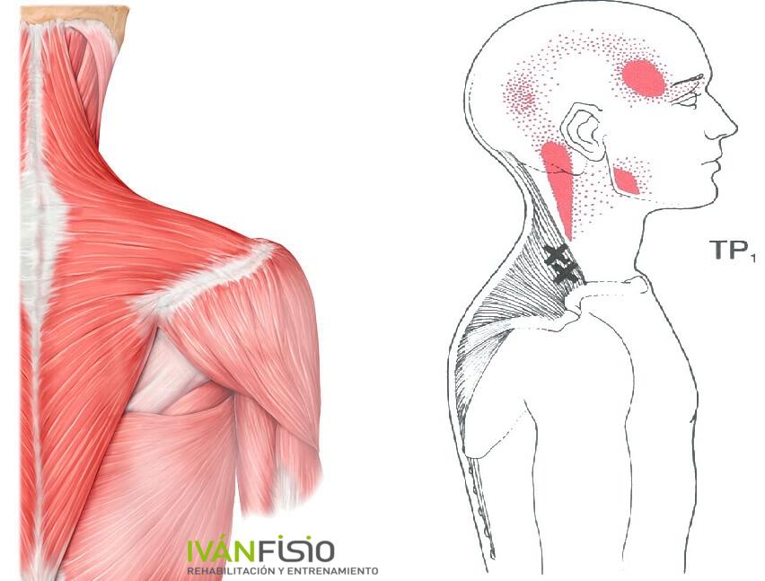 El dolor del músculo del cuello a la derecha